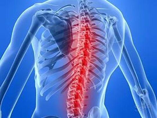 Metastazele vertebrale – dr. Dan Suiaga